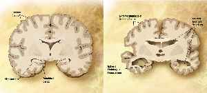 Alzheimer's disease: Progressive, neurodegenerative disease characterized by memory loss