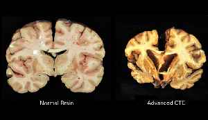 Chronic traumatic encephalopathy: Neurodegenerative disease caused by repeated head injuries