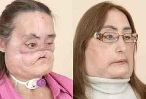 Connie Culp: American face transplant recipient