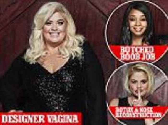 celebrity big brother cosmetic surgery revealed one news