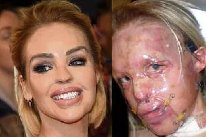Katie piper acid attack