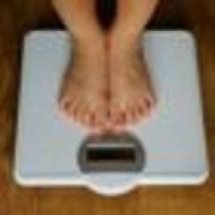 Use of BMI contributes to eating disorders and disrupts mental health, Westminster report finds