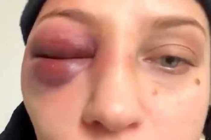 Ebanie Bridges' Face ID fails as boxer suffers with gruesome swollen eye