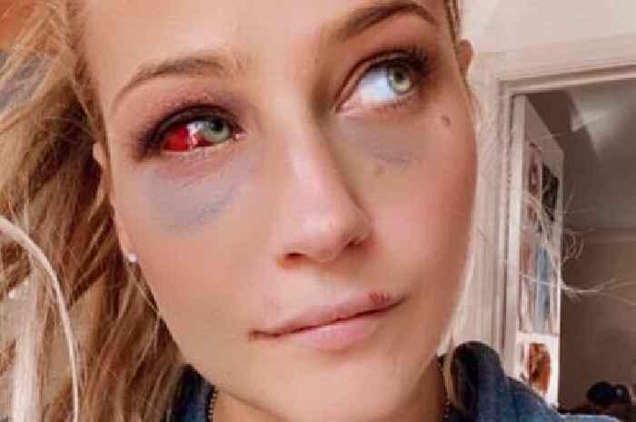 Ebanie Bridges' gruesome eye injury takes nasty turn and looks like Terminator