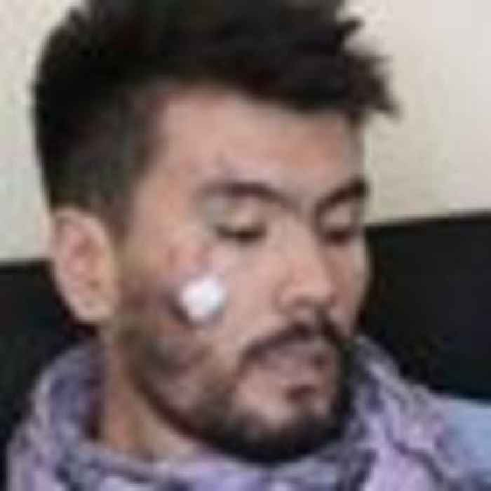 Afghan journalists 'severely beaten' for covering women's rights protests in Kabul