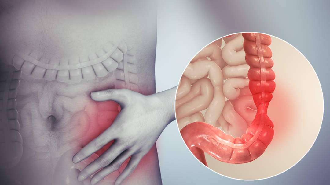 IBS trial to test amitriptyline as potential common treatment