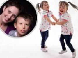 ceridwen hughes whose son has moebius syndrome photographs children with rare diseases