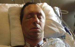 Homeless Man Who Was Beaten Into Comatose State Has Died