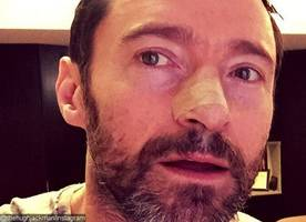 Hugh Jackman Is Treated for Skin Cancer Again, Reminds Fans to 'Wear Sunscreen'