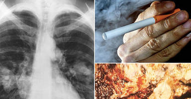 harvard study links e-cigs to incurable 'popcorn lung' disease