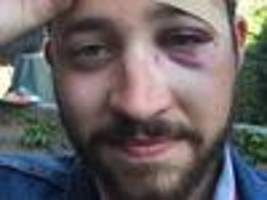 man punched for looking like shia labeouf