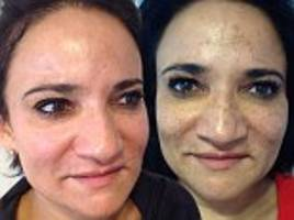 Danielle Gusmaroli undergoes Cosmelan facemask to erase freckles and is left red raw and peeling for weeks