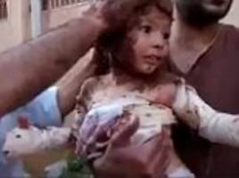 Harrowing video shows Syrian rebels using wet MUD to treat a little girl's 'NAPALM' burns after medical supplies run out in Homs
