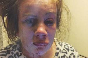 shocking picture shows teen mum with serious facial injuries after brutal attack