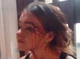Teenager, 15, is horrifically beaten by an 'animal' all-girl gang after being lured into a trap and then set upon