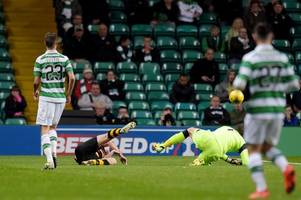 Craig Gordon challenge could have ended player's career - for ref not to send him off is a DISGRACE - Hotline