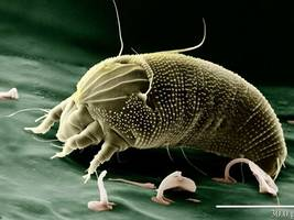 Mysterious Mite? Lake Forest Elementary Students Still Suffering Strange Skin Malady
