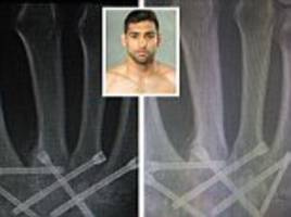 amir khan can't wait to use 'new hand' and plans boxing return in 2017 after successful operation to transplant hip bone into his fist
