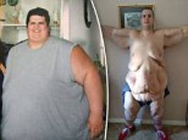 Florida man who weighed 714lbs shows reality of extreme weight loss as he exposes sagging skin in shocking video