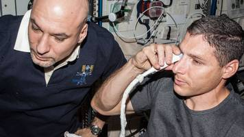 Astronaut eye problems blamed on fluid
