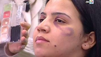 morocco broadcaster apologises after advising women to hide bruises
