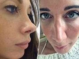 sisters spend £19,500 on surgery after 'hideous' nose jobs shattered confidence