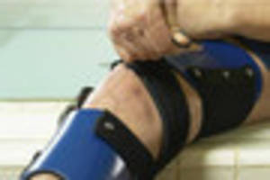 bristol hospital tries out revolutionary new 'living bandage' to...