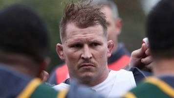 Dylan Hartley: Eddie Jones confident England captain will be fit for the Six Nations