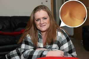 brave breast cancer mum beats trolls and saves life after posting shocking mastectomy photo on facebook