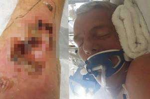 dad tied down and left covered in bed sores at barbados hospital after dream cruise turned into holiday from hell