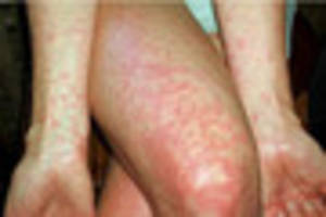 SEVEN  new cases of scarlet fever in Lincolnshire in one week
