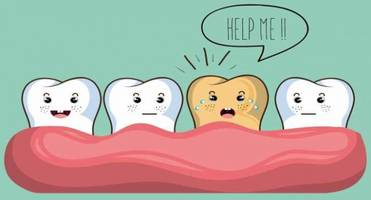 How to prevent teeth stains?