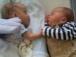 Twin holds hands with brother as doctors fight to save him