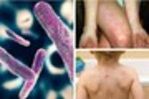 scarlet fever, chicken pox, shigellosis - illnesses and bugs...