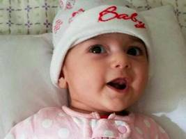 iranian baby with heart defect: doctors pleased with progress