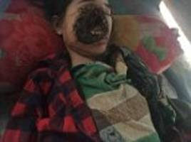 teenager left with 'no face' after routine dental work