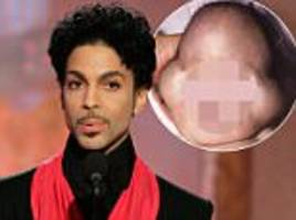 explained the genetic disorder that killed prince s son one news page