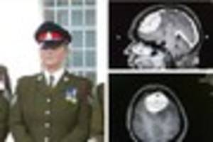 how a routine eye test revealed former soldier's huge brain...