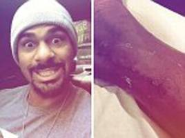 david haye reveals the new 'longest scar' he has
