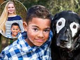 boy with vitiligo, 8, meets a dog with the same condition