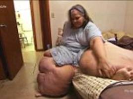 Ohio grandmother told weighs 605lbs to undergo surgery