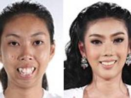 before and after photos reveal plastic surgery results