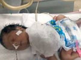 Pakistan baby born with her heart outside of her chest