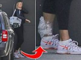 maria sharapova wears ice pack on her ankle after training