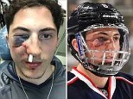 columbus blue jackets star zach werenski hit by puck
