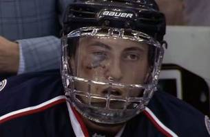 werenski ruled out for playoffs after taking a puck to the face