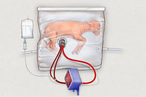 Artificial wombs keep baby lambs alive for weeks, may help preemies survive