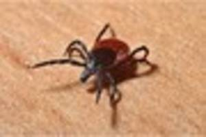 how do i remove a tick - and what are the symptoms of lyme...