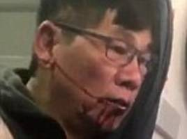 United Airlines reaches settlement with Dr. David Dao