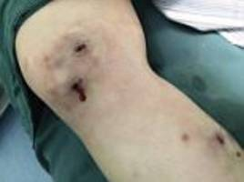 chinese woman had larvae burst out from under her skin